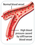 Plaque buildup leads to high blood pressure