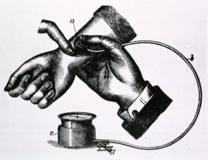 Sphygmomanometer as used by Karl Ritter von Basch in 1881. Image from the National Library of Medicine, History of Medicine Division, A013367.