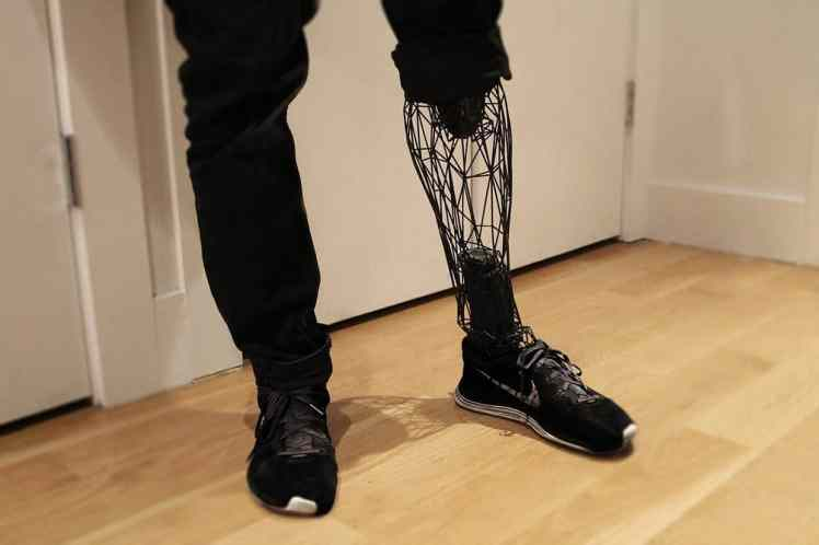 3D-Printed-Prosthetics-Where-We-Are-Today-IMG-04